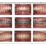 1-deep-bite-braces-orthodontist-cary-clayton-nc-mcnutt-33