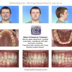 1-narrow-maxilla-cross-bites-braces-cary-clayton-nc-mcnutt-66