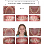 1-narrow-maxilla-expander-braces-orthodontist-mcnutt-2