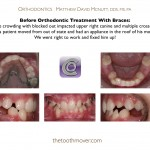 1-orthodontist-smile-braces-cary-clayton-nc-mcnutt-1313
