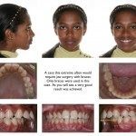 1-overjet-teeth-braces-orthodontist-mcnutt-88