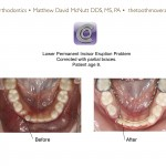 1-phase-I-lingual arch-incisor-blocked-mcnutt-orthodontist-1212