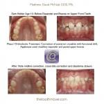 1-phase-I-orthodontic-treatment-expander-mcnutt-cary-clayton-nc-1111