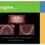 1-smile-crowded-teeth-braces-orthodontist-mcnutt-NC-cary-clayton-88