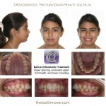 1-smile-straight-teeth-orthodontist-nc-mcnutt-1515
