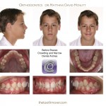 1-teen-crowded-straight-teeth-braces-mcnutt-orthodontist-99