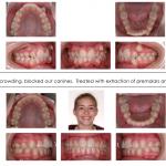 1-teen-crowded-teeth-canine-orthodontist-straight-mcnutt-10