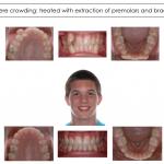 1-teen-crowded-teeth-orthodontist-mcnutt-99