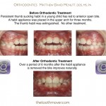 1-thumb-sucking-habit-appliance-orthodontist-holly-springs-raleigh-clayton-nc-mcnutt-33