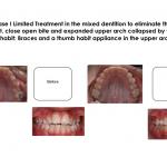 1-thumb-sucking-habit-appliance-orthodontist-holly-springs-raleigh-clayton-nc-mcnutt-66