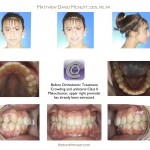 2-After-braces-premolar-extraction-orthodontist-mcnutt-46