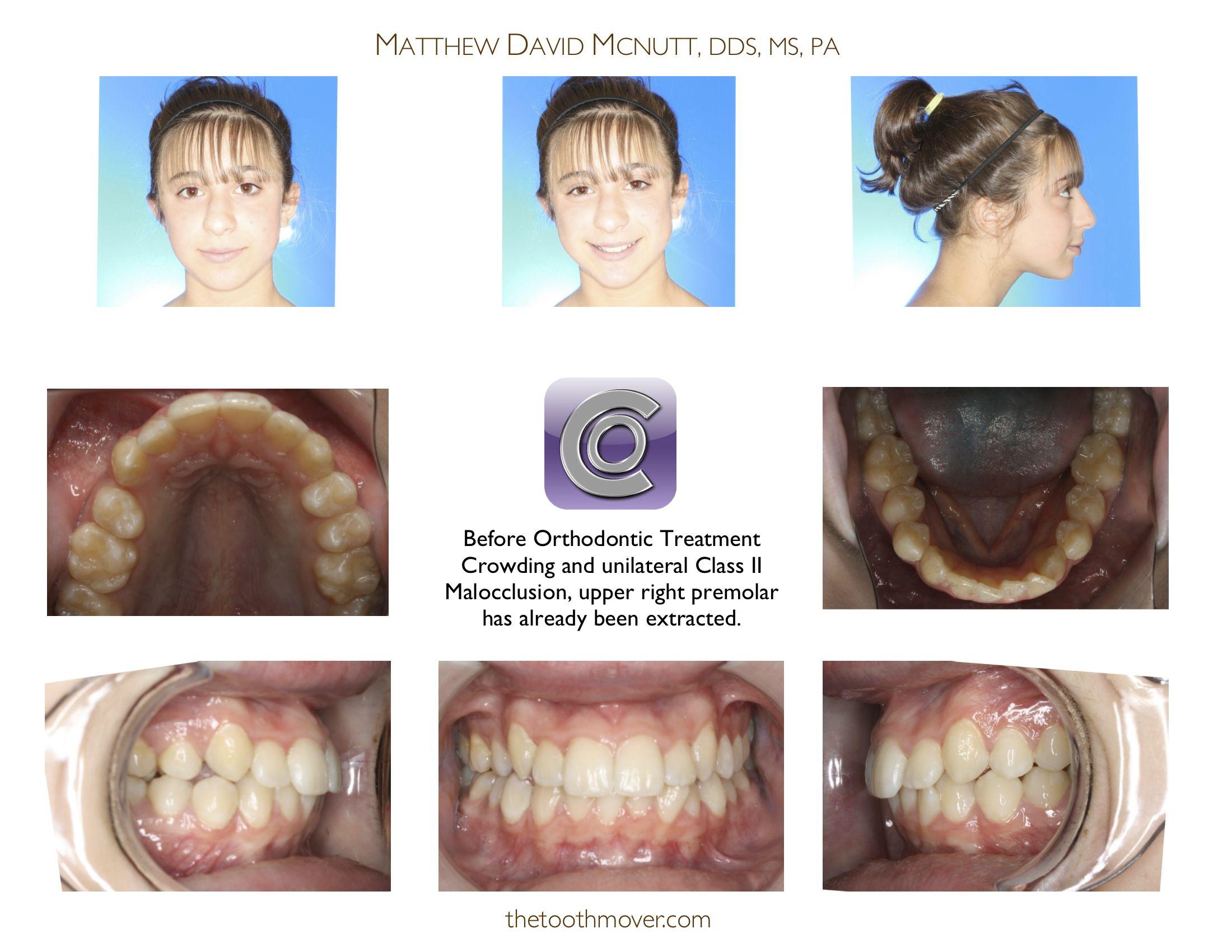 Class Ii Treatment Photos Orthodontics Cary Nc Clayton Nc