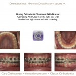 2-Blocked-canine-before-orthodontist-cary-clayton-nc-mcnutt-66