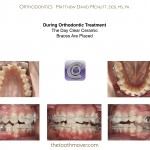 2-Braces-adult-extraction-orthodontist-mcnutt-nc-10