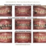 2-Class-II-MARA-Before-McNutt-Orthodontist-aa