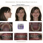 2-Class-II-MARA-During-McNutt-Orthodontist-2