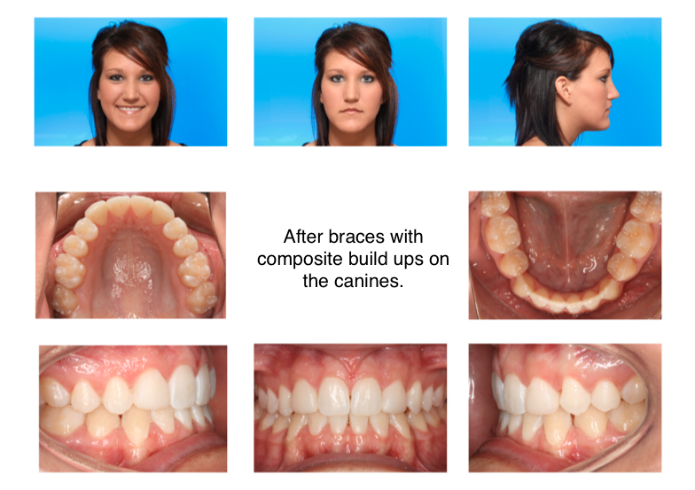 Braces Without Extractions 2-class-iii-extraction-braces