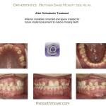 2-Class-III-missing-teeth-braces-orthodontics-mcnutt-cary-clayton-nc-44