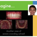 2-Crowded-teeth-orthodontist-mcnutt-braces-55