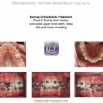 2-Crowding-Damon-Braces-Orthodontist-cary-clayton-nc-mcnutt-77