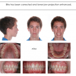2-Herbst-Class-II-orthodontist-mcnutt-cary-clayton-nc-66