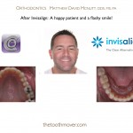 2-Invisalign-orthodontist-adult-McNutt-Cary-Clayton-NC-22