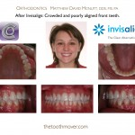 2-Invisalign-orthodontist-adult-McNutt-Cary-Clayton-NC-33