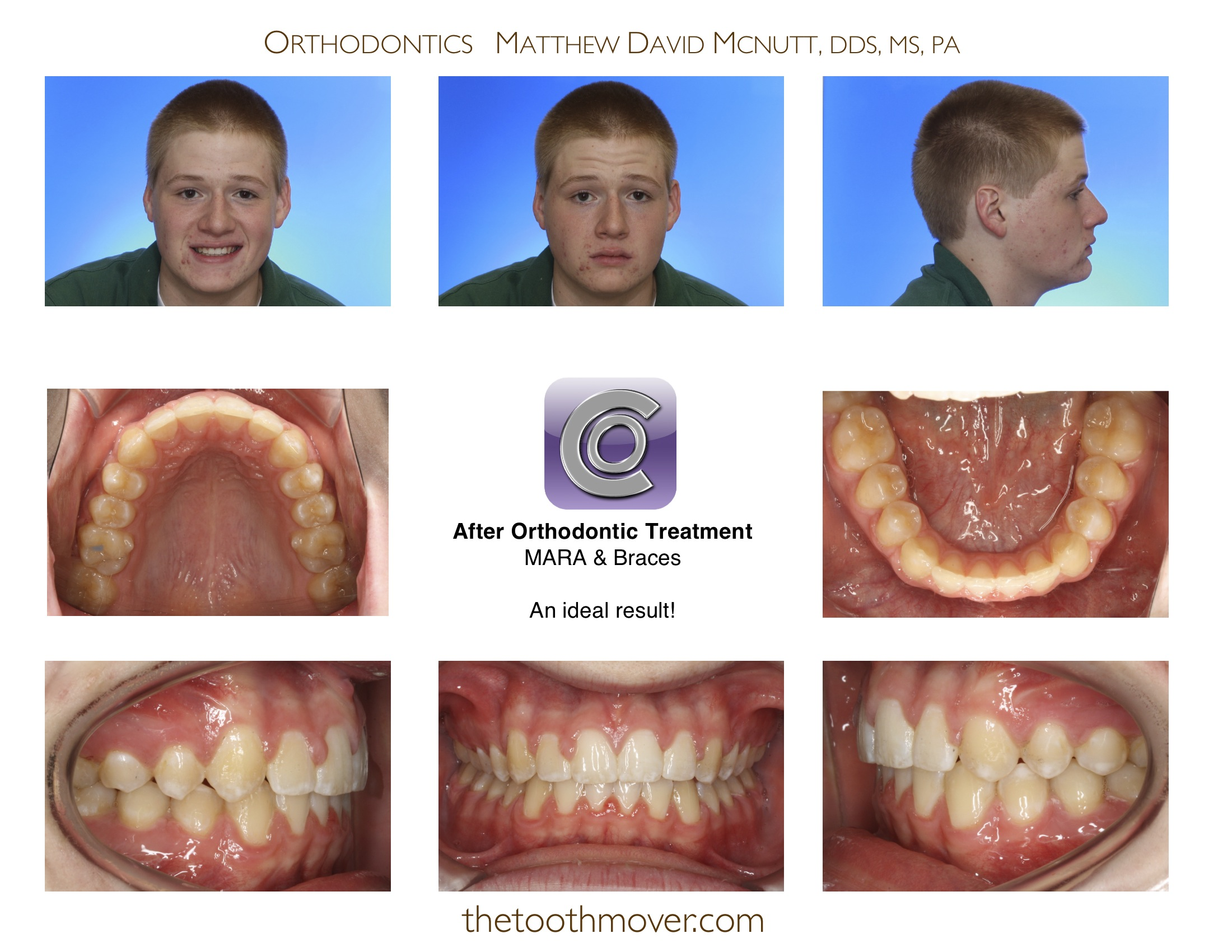 Class Ii Treatment Photos Orthodontics Cary Nc