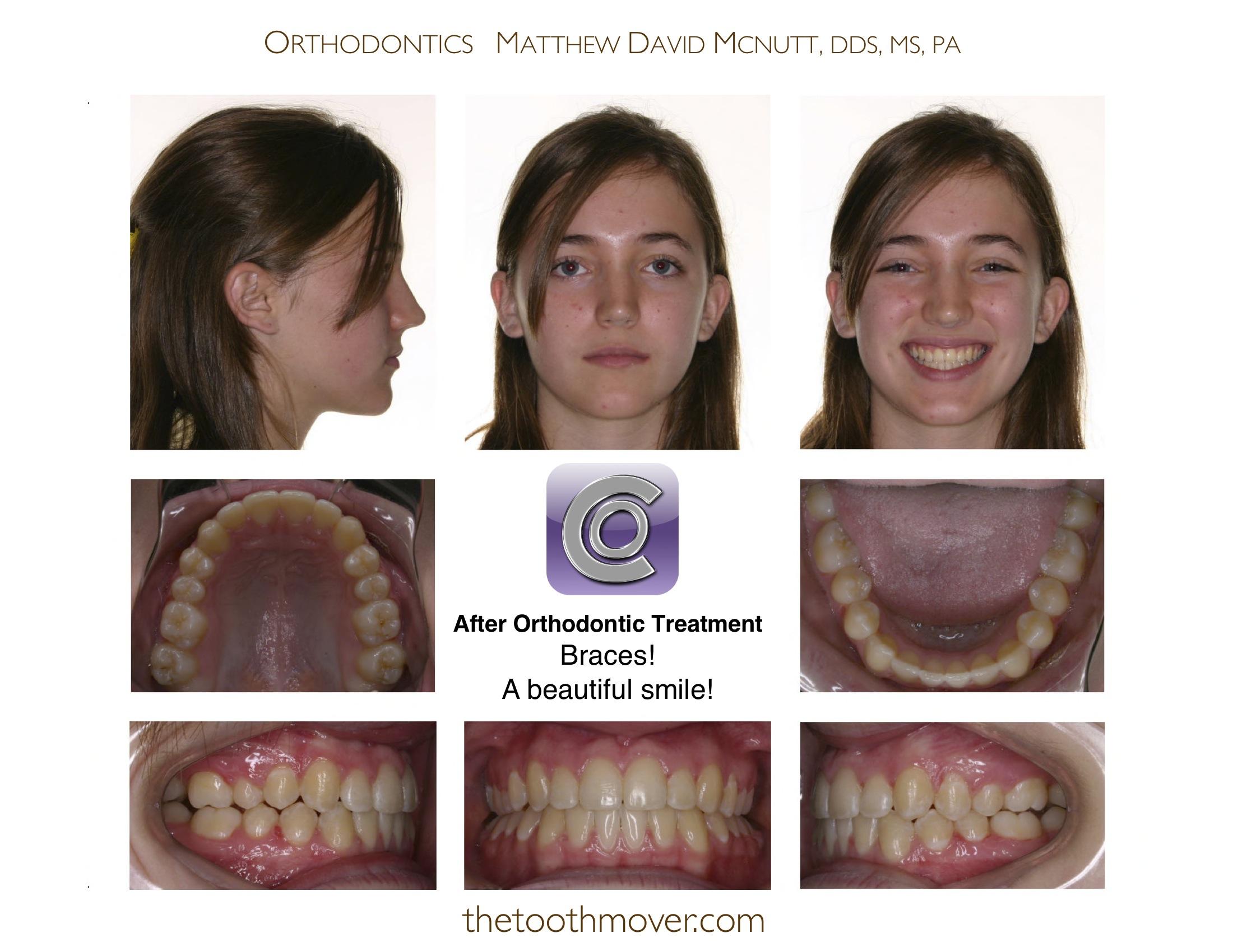 Open Bite Treatment Photos Orthodontics Cary Nc