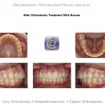 2-Orthodontist-cary-clayton-nc-crowding-braces-1414