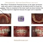2-Phase-I-Orthodontist-braces-cary-raleigh-mcnutt-88