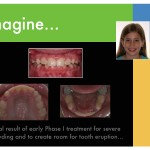 2-Phase-I-orthodontic-expander-braces-cary-clayton-nc-mcnutt-11