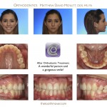 2-Serial-Extraction-Orthodontist-Braces-cary-clayton-nc-mcnutt-11