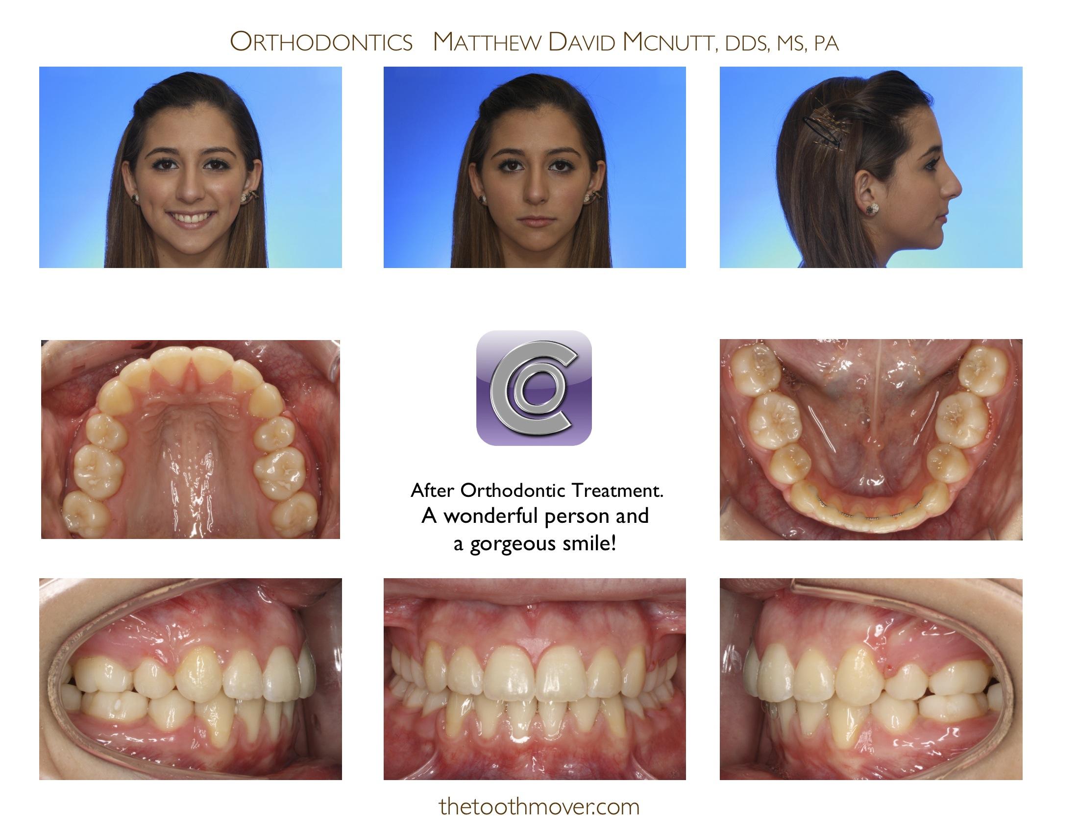 Crowding Extraction Treatment Photos Orthodontics