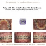 2-adult-orthodontic-treatment-damon-braces-mcnutt-44
