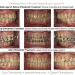 2-adult-orthodontics-braces-cary-clayton-nc-mcnutt-1111