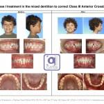 2-anterior-cross-bite-braces-orthodontist-cary-garner-nc-99