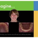 2-braces-colors-straight-teeth-orthodontist-mcnutt-55