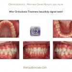 2-braces-orthodontist-cary-clayton-nc-mcnutt-1212