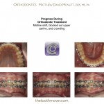 2-canine-blocked-out-impacted-braces-mcnutt-nc-22