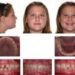 2-cross-bite-front-teeth-orthodontist-mcnutt-raleigh-nc-44