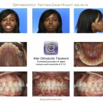 2-cross-bite-incisor-front-tooth-braces-cary-clayton-nc-55