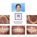 2-cross-bite-premolar-braces-orthodontist-cary-clayton-nc-mcnutt33