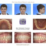 2-cross-bite-teeth-braces-cary-clayton-nc-1