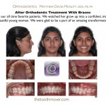 2-crowded-teeth-braces-orthodontist-cary-clayton-nc-12