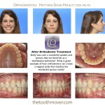 2-crowding-braces-orthodontist-mcnutt-clayton-cary-nc-22