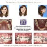 2-crowding-braces-premolar-extraction-orthodontist-mcnutt-11