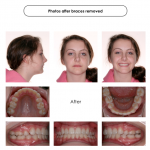 2-crowding-braces-premolar-extraction-orthodontist-mcnutt-22