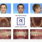 2-crowding-damon-braces-orthodontist-mcnutt-clayton-cary-nc-33