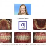2-damon-braces-crooked-straight-teeth-orthodontist-mcnutt-1010